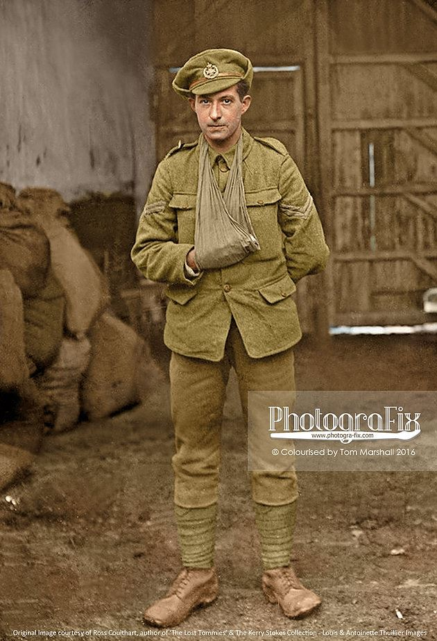 A soldier (possibly of the Leeds Rifles) sporting an injured hand.